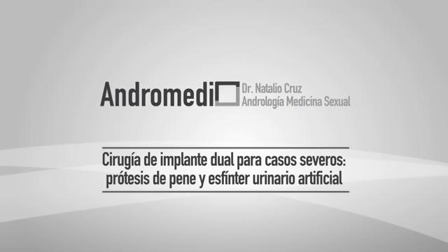 Operación dual de PROTESIS DE PENE y ESFINTER URINARIO ARTIFICIAL. Clínica Andromedi